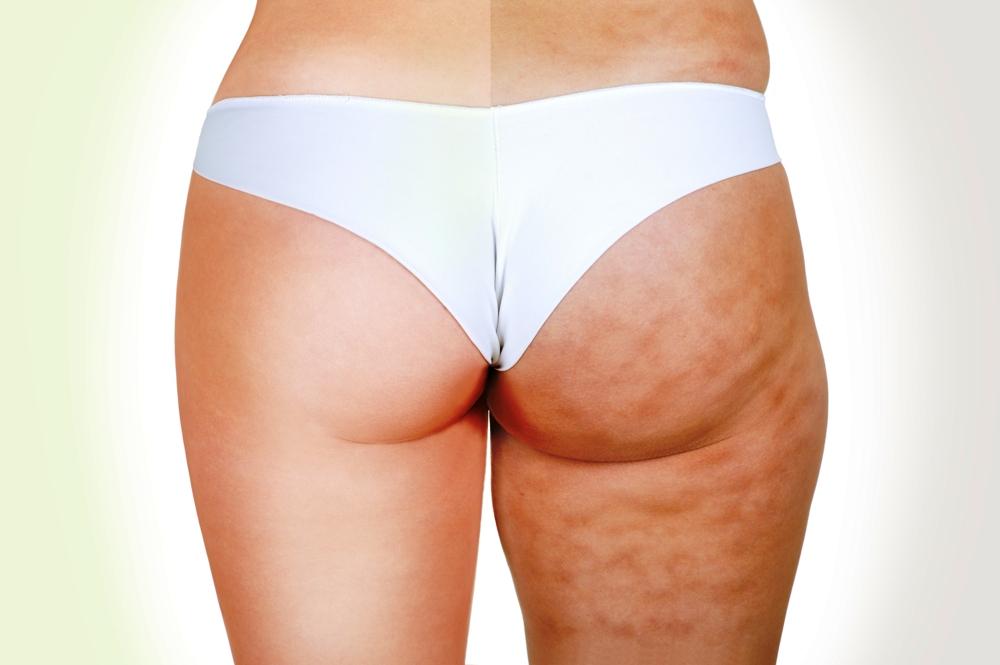 dieta per sbarazzarsi di cellulite sulle cosce